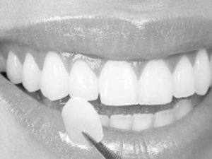 Placing Veneers